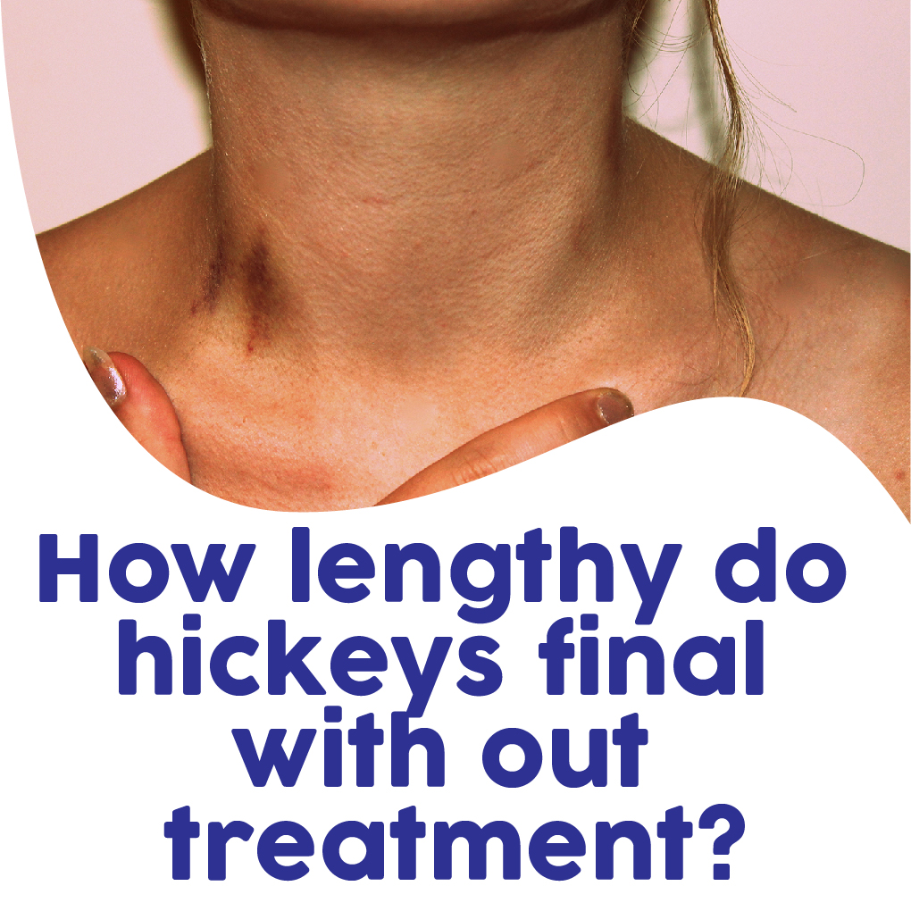 How To Get Rid Of A Hickey In An Hour
